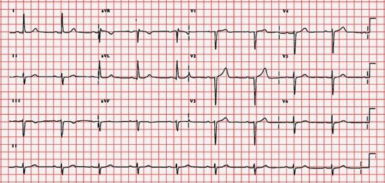 Difference Between 1st 2nd and 3rd Degree Heart Block