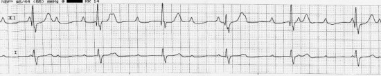 Key Difference Between 1st 2nd and 3rd Degree Heart Block