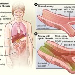 Difference Between Genetic Disorders and Chromosomal Disorders