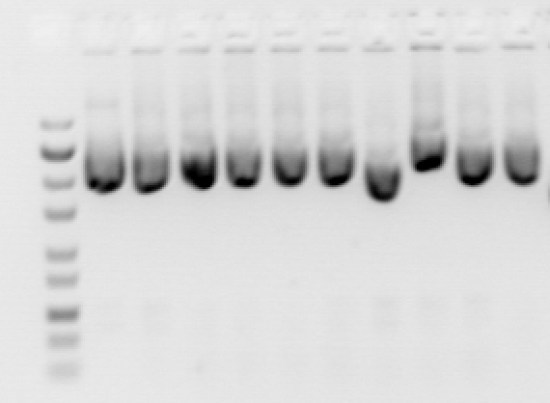 Key Difference Between Genomic DNA and Plasmid DNA Isolation