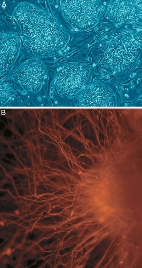 Difference Between Pluripotent and Multipotent Stem Cells