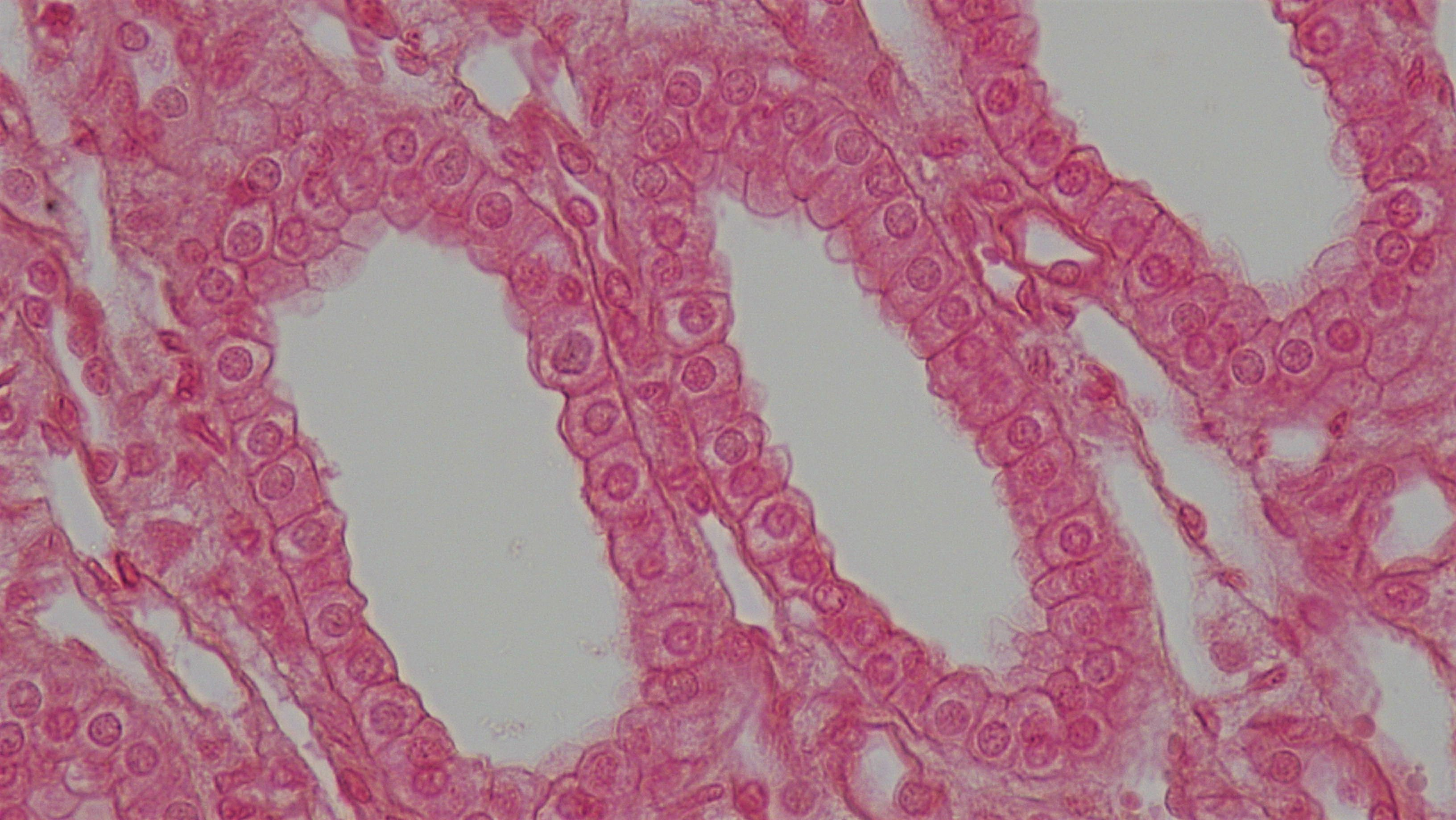 Difference Between Simple And Compound Epithelium