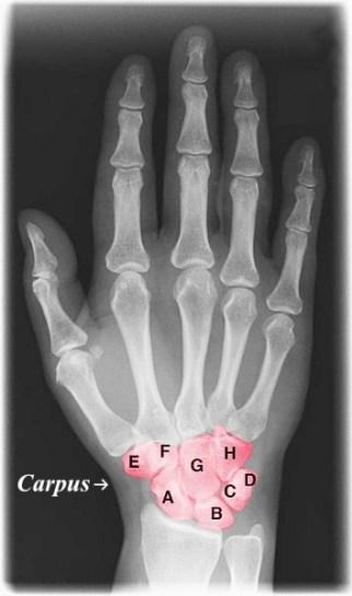 Key Difference - Tarsal vs Carpal Bones
