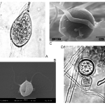 Difference Between Oomycetes and True Fungi