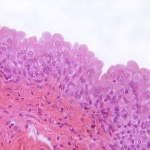 Difference Between Pseudostratified and Transitional Epithelium