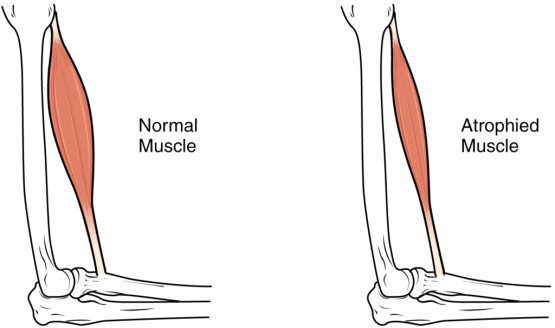 Normal Muscle vs Atrophied Muscle