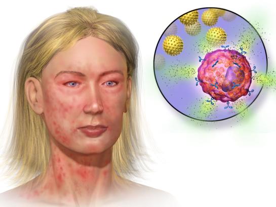 MCAS vs Histamine Intolerance in Tabular Form