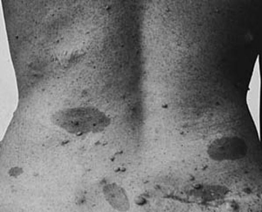 Neurofibroma vs Neurofibromatosis in Tabular Form
