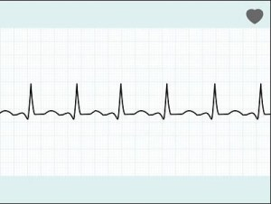 Medical Cardio Waveform