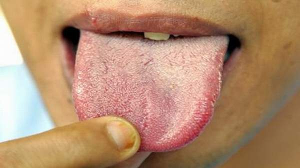 White Tongue: Learn the Causes and Home Remedies | Health Digest
