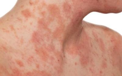 Is Biofilm The Cause of Eczema?