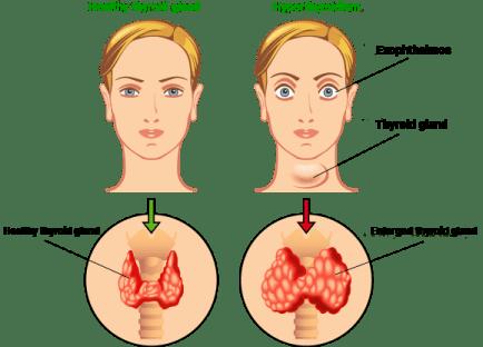 Thyroid Gland malfunction