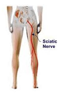 sciatica nerve image showing pain down leg