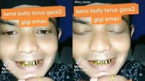 Seluruh Giginya Dibalut Emas, Pria Ini Malah Dihujat Netizen