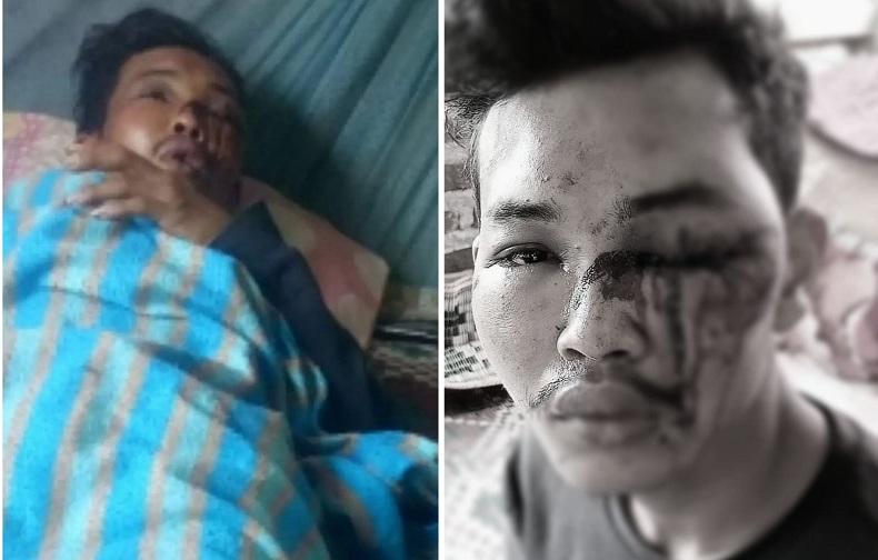 Dugaan Bandar Sabu Culik dan Aniaya Warga Deliserdang, Polisi Bergerak Usai Diperintah Kapolda