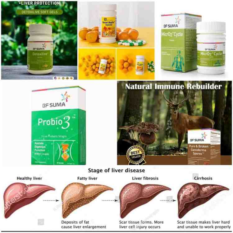 Supplements combo for liver protection. These supplements: Detoxilive capsules, Novel-Depile capsules, Probio3, MicrO2 Cycle tablets, and Pure & Broken Ganoderma Spores, are the best for liver health protection.