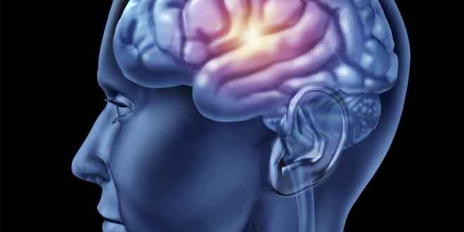Brain-min