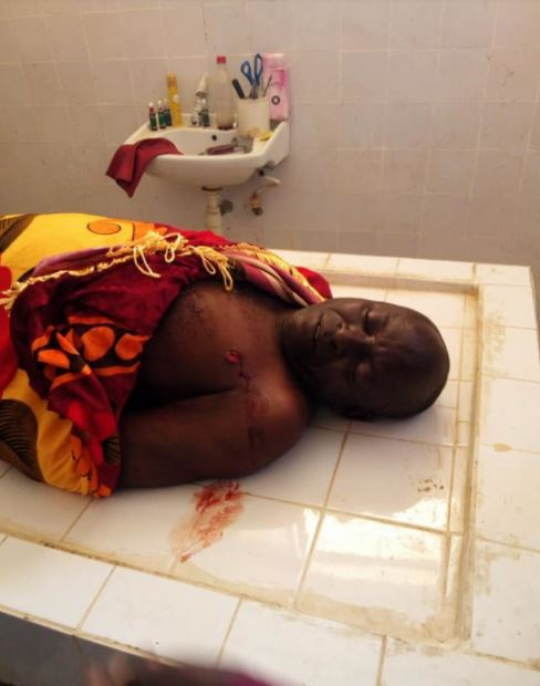 Husband Stabbed To Death While Separating Fight Between His Two Wives (Graphic Photo)