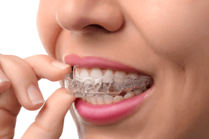 Bruxismo en odontología.