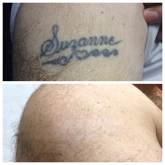 Image result for Boston Tattoo Removal Experts Review