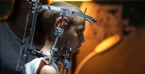 Ad Alexia viene impiantata la placca di titanio