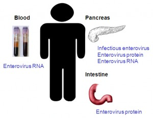 Figure 3. Enterovirus detection in patients with type 1 diabetes. Enteroviruses and/or their components have been detected in patients with type 1 diabetes. Enterovirus RNA was present in blood. Enterovirus RNA and capsid protein VP1 have been detected in small intestine biopsies. Enterovirus RNA, capsid protein VP1, and infectious enterovirus were found in autopsy pancreas samples.