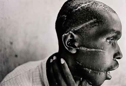 Torture in Rwanda (James Nachtwey, USA)