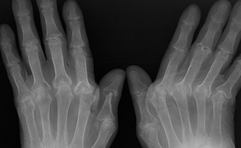 radiografia mani arttrite rematoide remautismi
