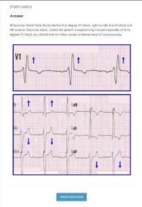 EKG Skills