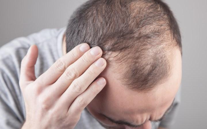 Hair Fall Reasons in Male