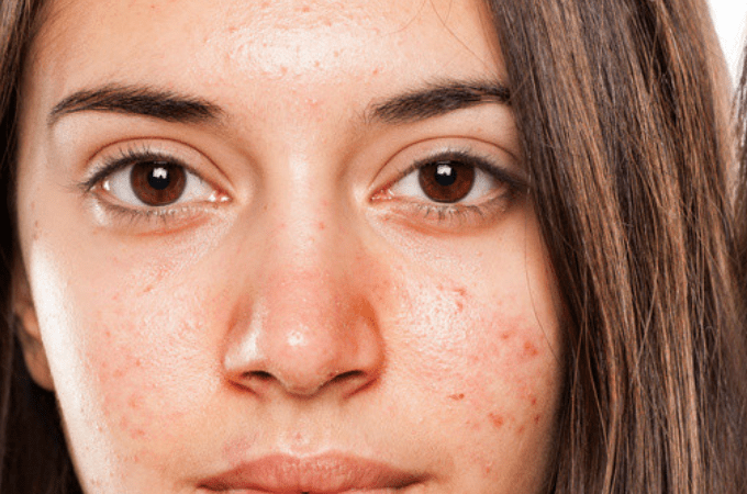 Red Pimples On Face Treatment