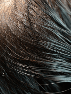 Home Remedies To Get Rid of Lice Fast