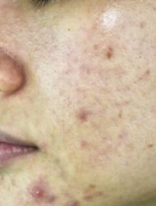 Pimples Treatment For Oily Skin