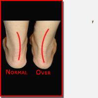 Foot Pronation