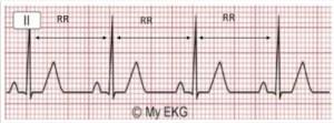 matriz do eletrocardiograma