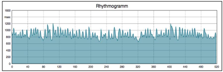 ein Rhythmogramm, das die Herzratenvariabilität darstellt