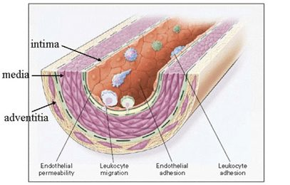 Low-Density Lipoprotein (LDL) in Atherosclerosis and Heart Disease