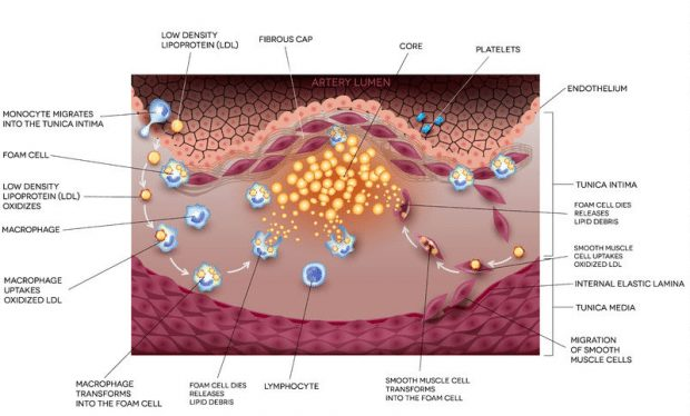 diagram of blood vessels developing atherosclerosis wiring Effects of Atherosclerosis Heart Disease low density lipoprotein (ldl) in atherosclerosis and heart disease blood vessel spasm diagram of blood vessels developing atherosclerosis