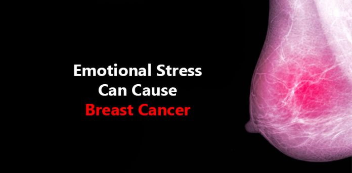 Emotional Stress Can Cause Breast Cancer Doctor Asky