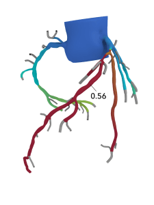 Heartflow FFRct Analysis can create a 3D model of a patient's arteries to determine the presence and impact of artery blockages.