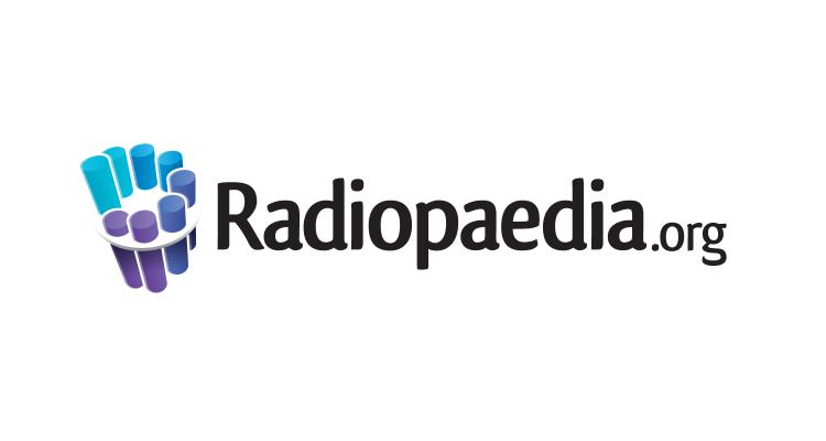 Radiopaedia-logo-transparent-bkgd