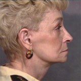 Female Caucasian between Age of 51 - 65 with a Neck Lift Procedure