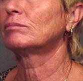 Pre-Operation of a Caucasian Female with a Lip Augmentation Procedure