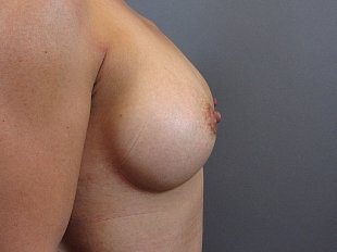 Breast Augmentation procedure by Dr. Ptak, MD, FACS. The patient is a caucasian female, age 41-50. Primary Augmentation. Side profile view of patient after procedure.