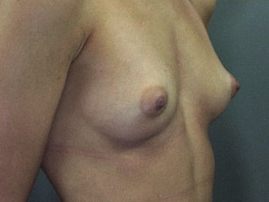 The photo is of a patient 31 - 35 years of age. She is a caucasian female. Procedure done was a breast augmentation. she went from a small B cup to a Full c or small D.  Preoperative picture