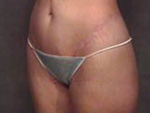 This patient is a 35 - 40 year old, caucasian female. 360 abdominoplasty, tummy tuck where the incision was continued the entire way around the body to incorporate a full body lift and contour. Scar right on the thong line. Incidental liposuction. oblique view. by Dr. Jeffery Ptak. preoperative before photo.