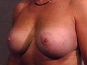 The Procedure performed was a Breast Lift, or Mastopexy, along with the placement of breast implants. The patient is a 41-50 year old caucasian female. Procedure performed by Dr. Jeffrey J. Ptak, MD, FACS. Oblique view. Before Photo.