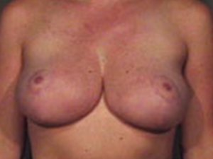 The Procedure performed was Breast Reduction, or Reduction Mammaplasty. The patient is a 41-50 year old caucasian female. Procedure performed by Dr. Jeffrey J. Ptak, MD, FACS. Lateral view. Before Photo.