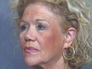 Caucasian Female Age: 51 - 65 Procedure: Facelift, Neck Lift