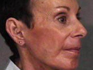 Patient #: 1692Gender: FemaleEthnicity: CaucasianAge: 51 - 65Procedure: Facelift, Skin Resurfacing